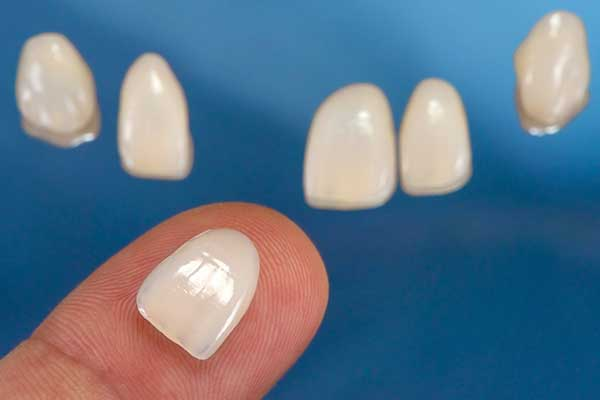 Porcelain Veneers in Minot, ND
