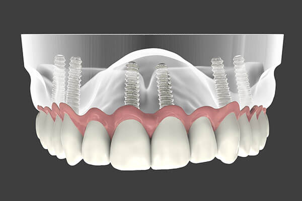 Implant Supported Dentures in Minot, ND