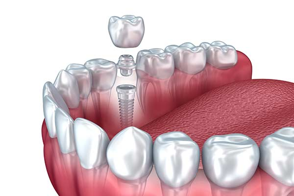 Dental Implant Restorations in Minot