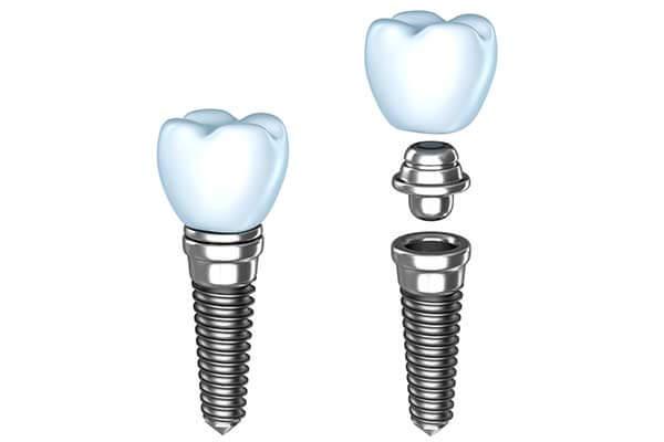Single Dental implants in Minot, ND