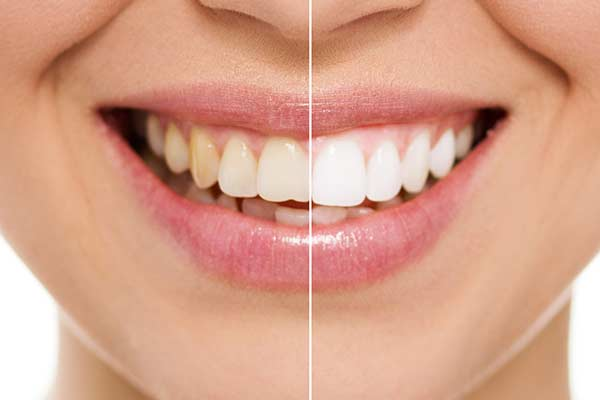 Before & After Teeth Whitening in Minot